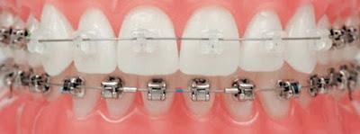Chi phí niềng răng mắc cài sứ bao nhiêu?