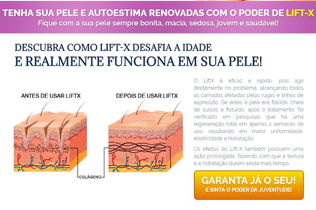 lift-x