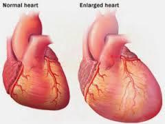 cara mengatasi jantung yang bengkak