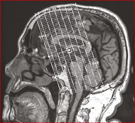 Aivojen Valkean Aineen Muutokset