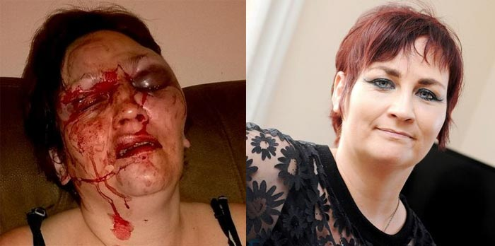 Graphic: Woman Recounts How Husband Disfigured Her For Receiving Text From Another Man