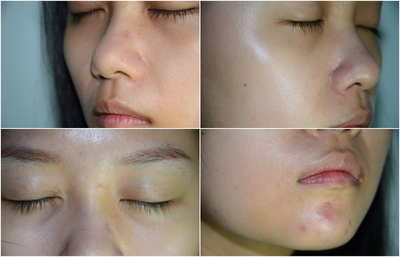 REVIEW| Skin Gym Laser Clinic Series: 1 Introduction