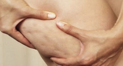 Penyebab dan Cara Alami Mengatasi Selulit