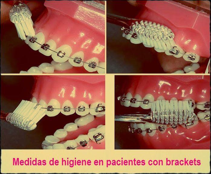 Higiene Brackets