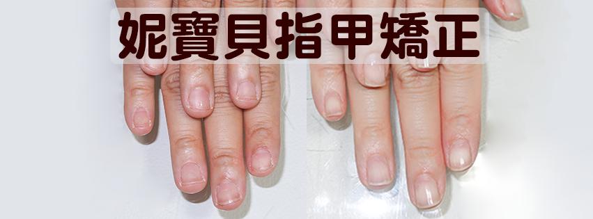 妮寶貝-指甲矯正 問題指甲處理 專業指甲店