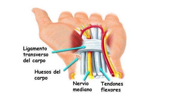 Síndrome del túnel carpiano | Medicusmeo