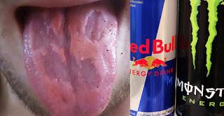 Energy Drinks, His Tongue 'Eaten Away'