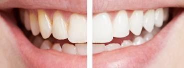 Traiter-le-jaunissement-des-dents
