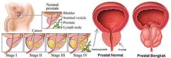 Inilah Cara Menyembuhkan Pembengkakan Prostat Secara Alami Tanpa Operasi, Sembuh Dengan Lycopene Softgel