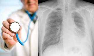 Mesothelioma Cancer Lawsuit and Navy Veterans