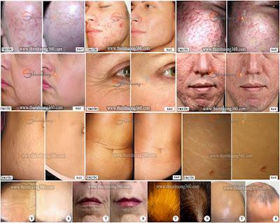Kết quả sau khi lăn kim trị sẹo rỗ, thâm, nhăn da, rạn da, hói đầu