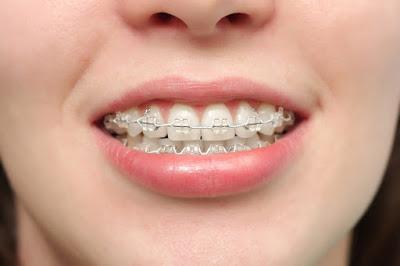 Tổng hợp những thông tin liên quan đến niềng răng