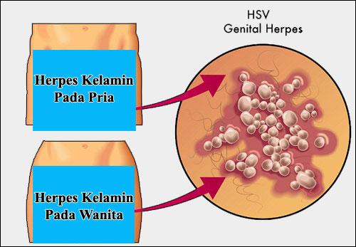 Gambar Herpes Simplex
