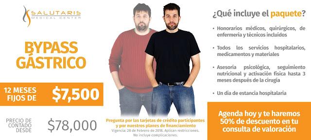 Paquete de Bypass Gastrico Sobrepeso Obesidad Guadalajara Mexico