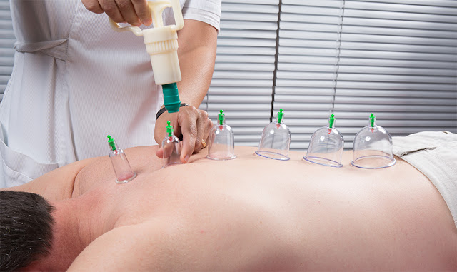 Dry cupping For Musculoskeletal Medicine