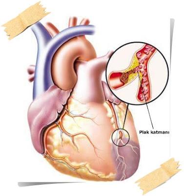 Kalp damar tıkanması