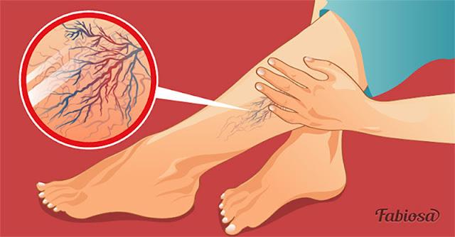Капиллярная сетка на ногах — косметический дефект или серьезная проблема?