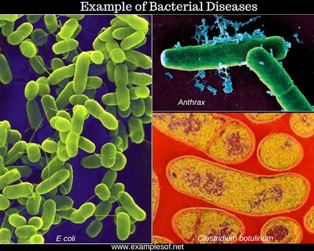10 Examples of Bacterial Diseases