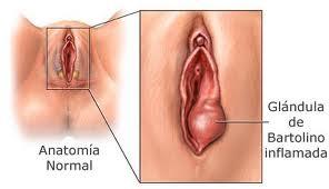 dolor insoportable dentro de la vagina