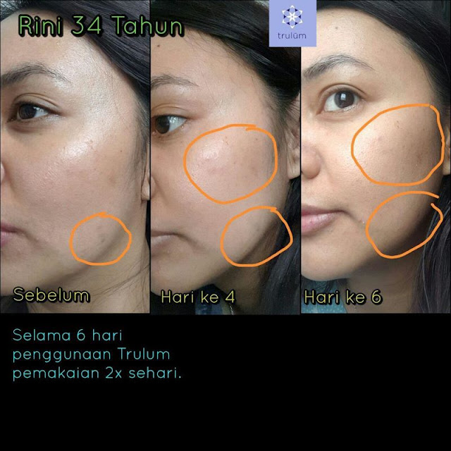 Jual Serum Penghilang Keriput Trulum Skincare Kubung Solok