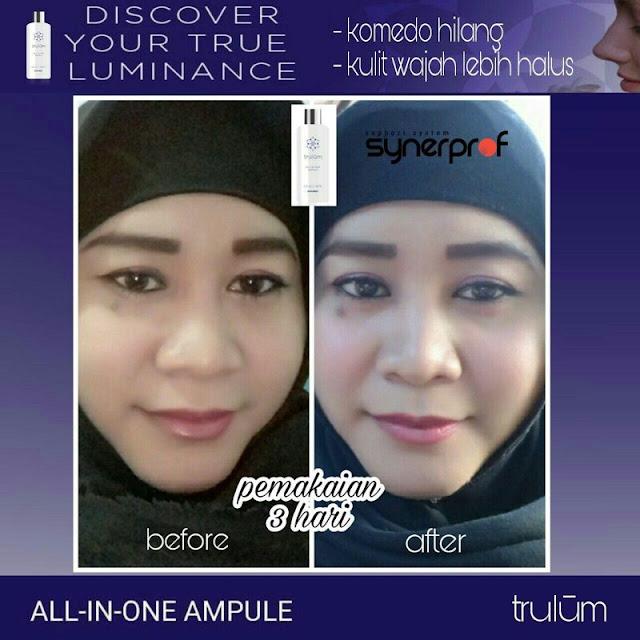Makin Cantik atau Ganteng Tanpa Harus Ke Dokter Kecantikan di Kr. Barona Ja Aceh Besar