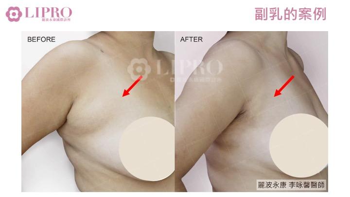 副乳抽脂手術