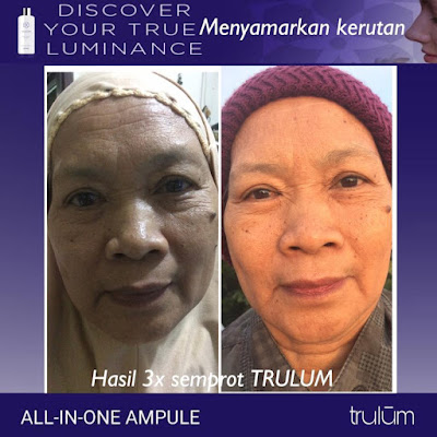 Jual Obat Penghilang Flek Hitam Trulum Skincare Way Kanan Lampung