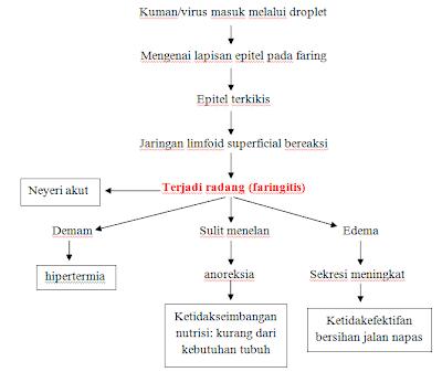 Faringitis Evan Evan Mandala Putra