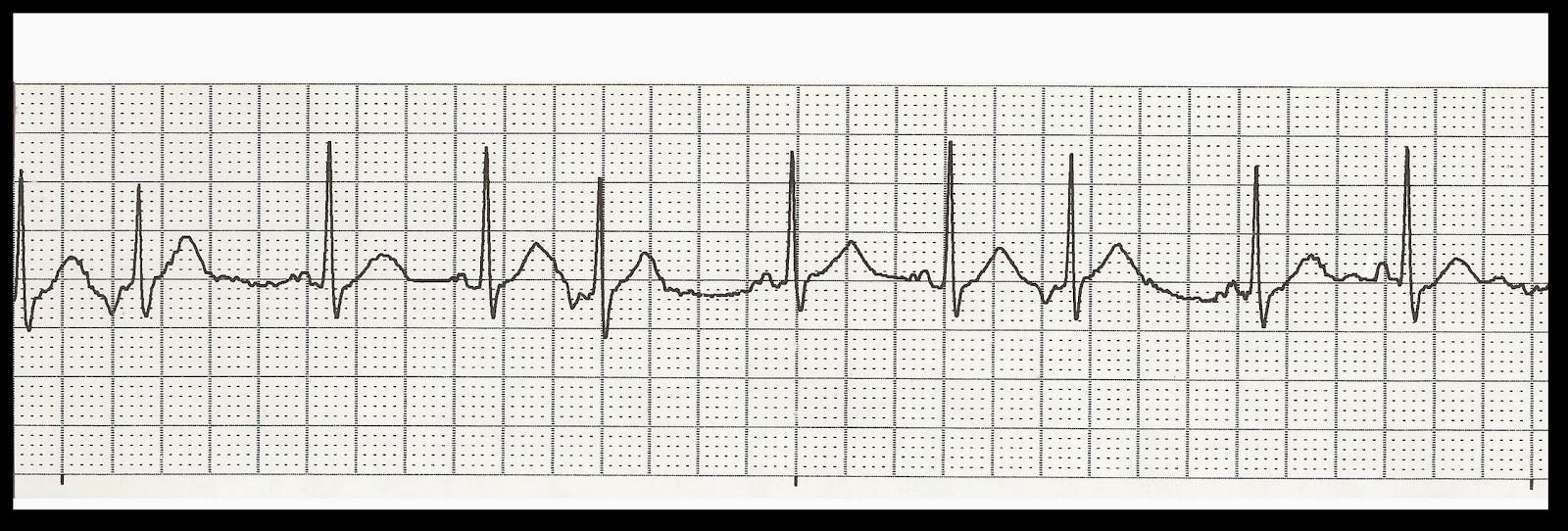 Float Nurse: EKG Rhythm Strip Quiz 202