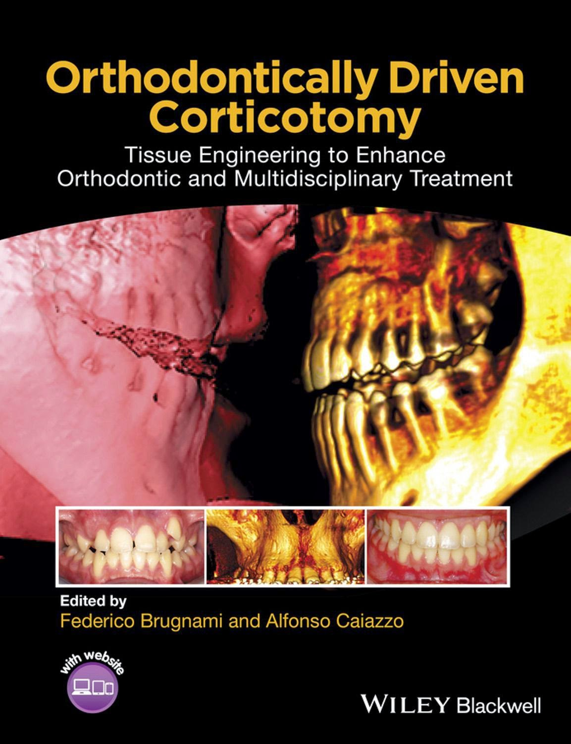 Orthodontically Driven Corticotomy - Federico Brugnami,Alfonso Caiazzo - 1st.ed.© 2015.pdf