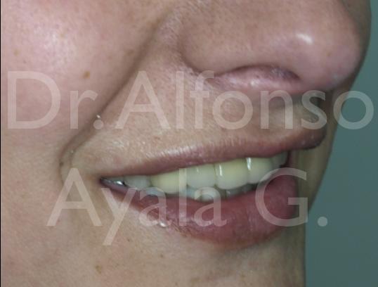 Cirujano Oral 20