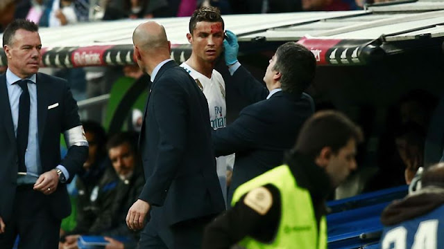 Bloodied Cristiano Ronaldo uses phone to check his facial injury and Twitter users just couldn