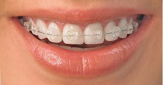 Cuidar los dientes durante la ortodoncia