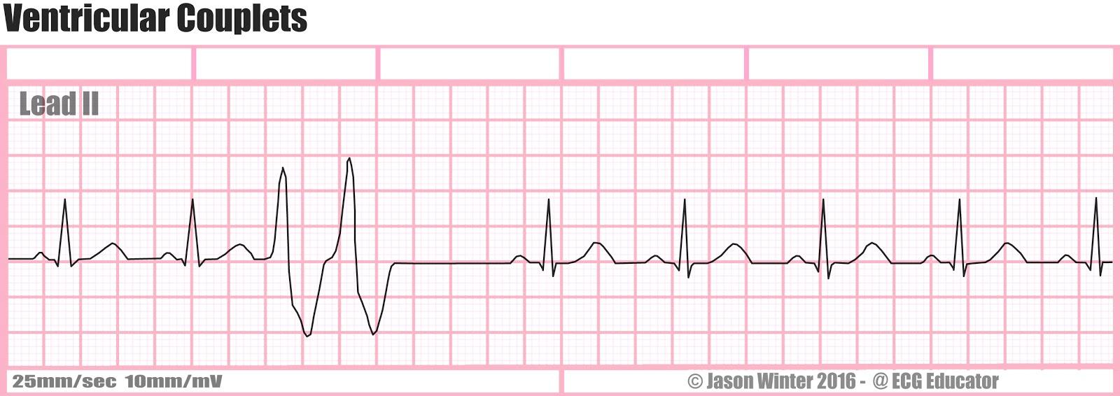 Ventricular Couplets