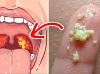 6 horrific Symptoms Of Tonsilloliths that ought to ne'er Be unnoticed