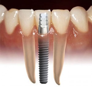 Pasang Implan Gigi Di Jogja