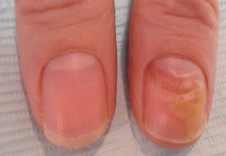 VIRTUAL GRAND ROUNDS IN DERMATOLOGY 2.0: Nail Dystrophy in 59 yo Woman