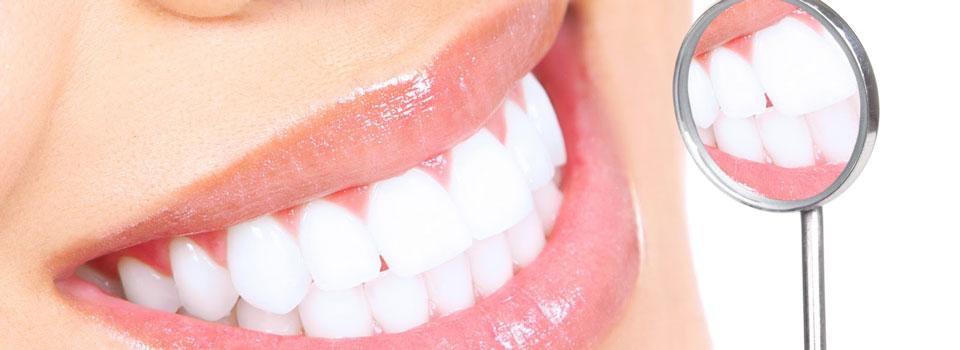 Cara Alami Biar Gigi Putih Berseri Dengan Stromemberikan Contoh