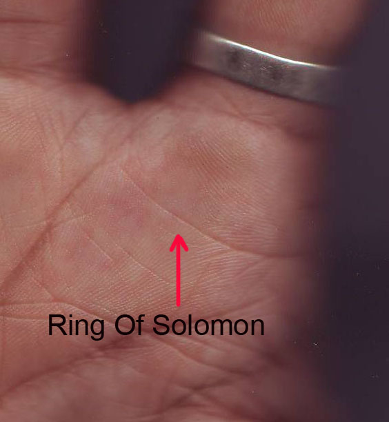 jupiter ring, girdle of jupiter, ring of solomon, diagonal line on mount of jupiter, mound of jupiter, hill of jupiter