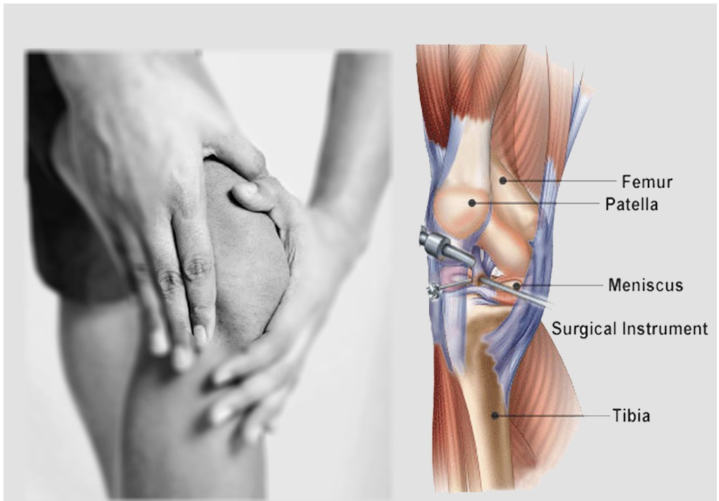 Cheapest Price of Arthroscopy in India win win solution for your ...