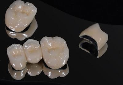 so sánh răng sứ kim loại và răng sứ không kim loại -4