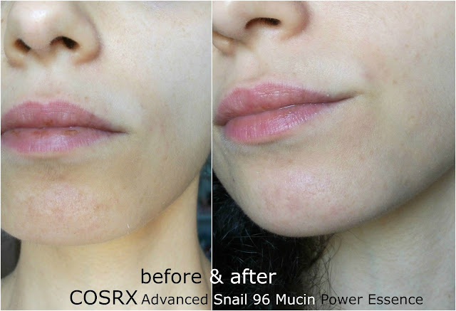 Before and after picture using CORSX Advanced Snail 96 Mucin Power Essence anti imperfection