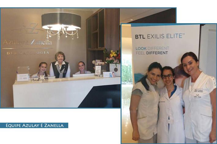 dermatologia, joinville, exilis exit, blog famoso, blog da jana, Azulay e Zanella