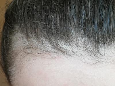 Na ratunek włosom po ciąży - wcierka do włosów Seboradin Niger