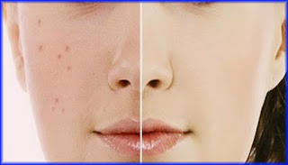 Simple Ideas of Acne Dark Spots Removal Home Remedies for the Effective yet Safe Solution