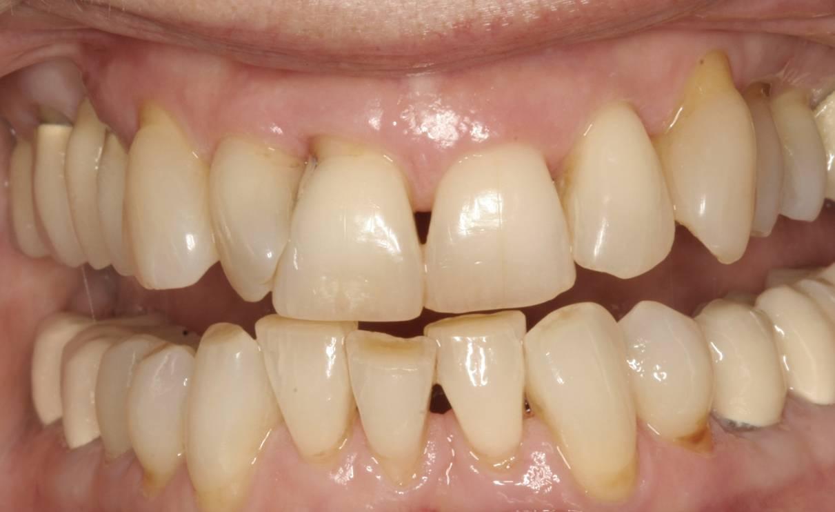 Larchmont Village Orthodontist - Hancock Park - Los ...