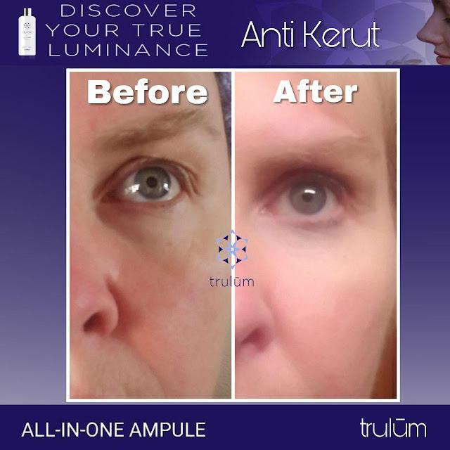 Jual Serum Penghilang Jerawat Trulum Skincare Stm Hilir Deli Serdang