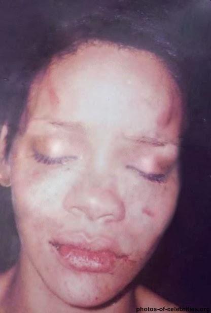 Beat Face Makeup Tutorial: Real Cuts, Bruises & Illness In The Victorian Era