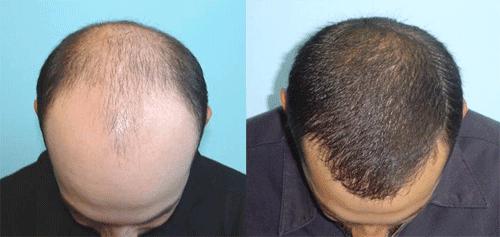 cuanto cuesta un implante de cabello o injerto