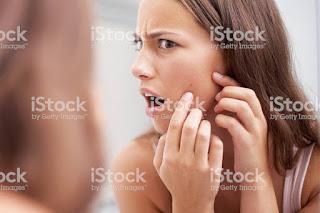 Pimples face
